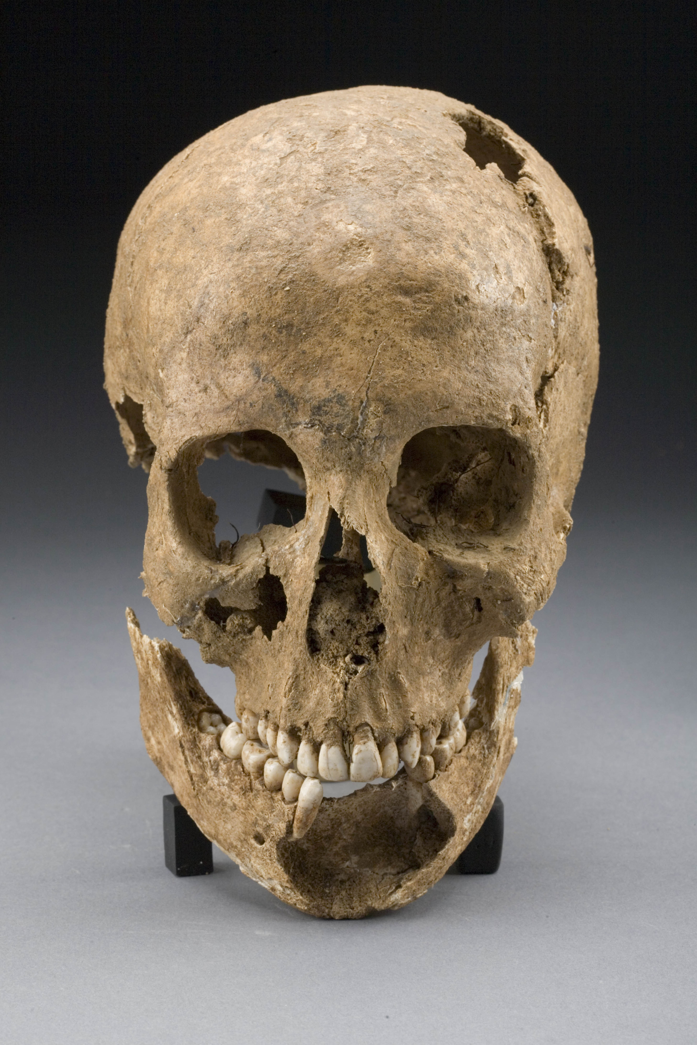 colonial skull smithsonian institution