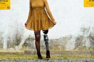 Woman with prosthetic leg wearing short dress