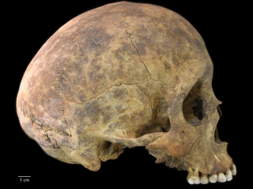 One of two cases of healed blows to the cranium from the Playa Venado excavation