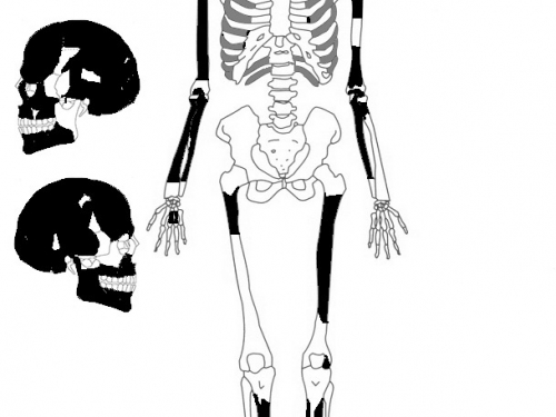 Graphic of skeleton and skull