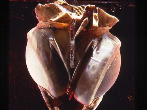 Liotta-Cooley Artificial Heart, 1969