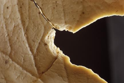 interior view of gunshot wound