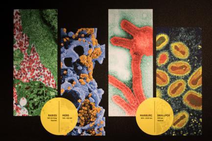 viruses on slide